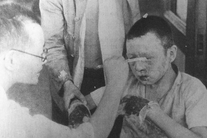 hiroshima nagasaki bombing pictures injured boy a