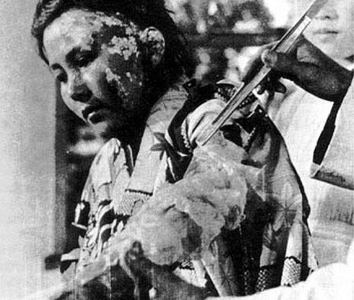 hiroshima nagasaki bombing pictures injured woman ab