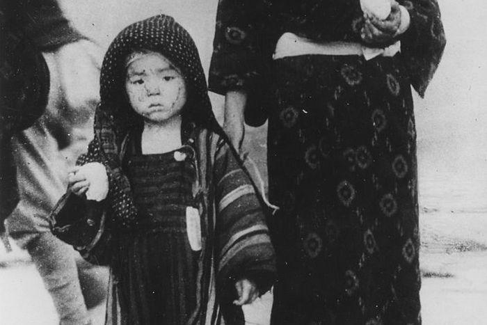 hiroshima nagasaki bombing pictures nagasaki girl woman 1a