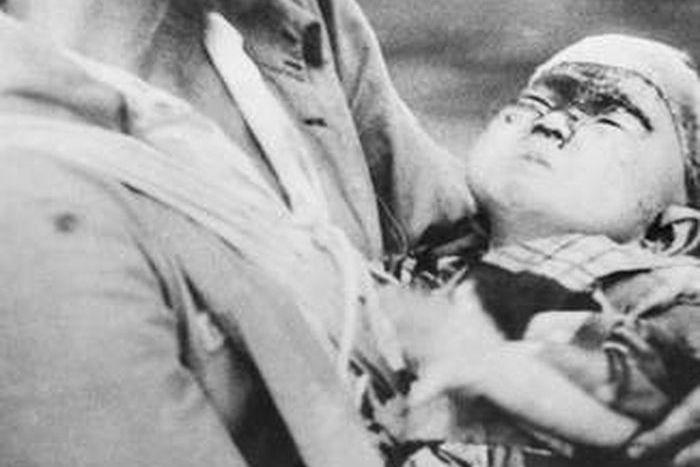 hiroshima nagasaki bombing pictures nagasaki wounded baby 1b